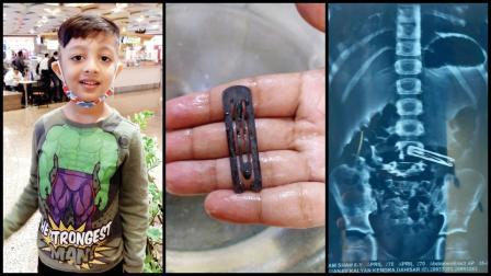 ૬ વર્ષનો અર્હમ અને નીકળી આવેલી હેરપિન તેમ જ એક્સ-રે માં દેખાતી હેરપિન