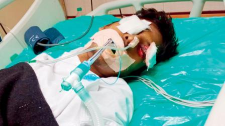 આઈસીયુમાં સારવાર લઈ રહેલા ક્રિટિકલ પેશન્ટને આંખ પર ઉંદર કરડ્યો હતો